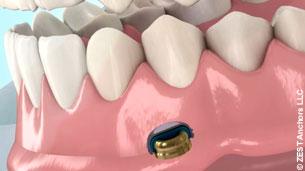 zusatzversicherung zahnersatz implantate